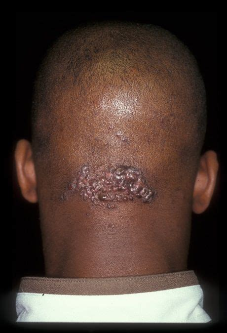 infected hairs on neck electric razor are bumps located at the lower hairline just above the