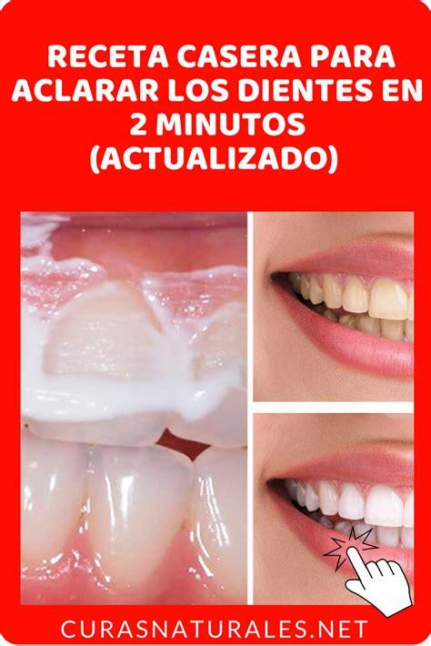 como blanquear dientes en casa 191 c 243 mo blanquear los dientes en casa aprende estas 4 maneras