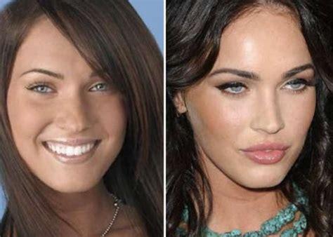 marys extreme makeover face nose and body 22 vip che ti fanno capire che il tuo problema 232 essere