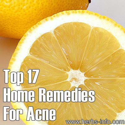 top 17 home remedies for acne herbs info
