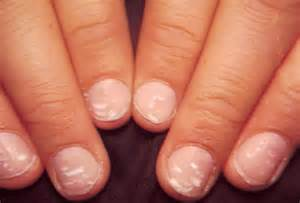 are your nail problems related your health find out in 1