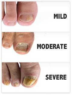 Nail Bed Pain Nail Fungus Information Purnail 174 Official Site