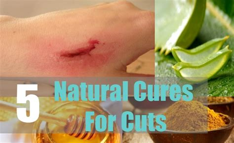 5 cuts treatments and cures home
