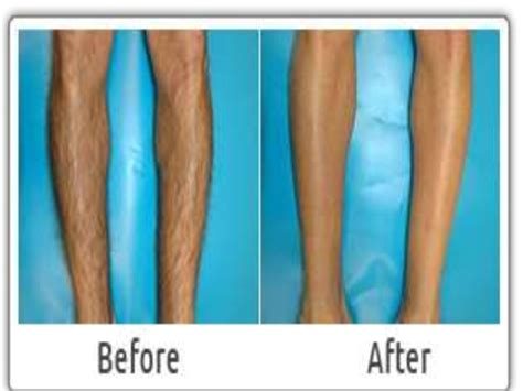 hair removal for legs cashgate malawi laser hair removal for legs
