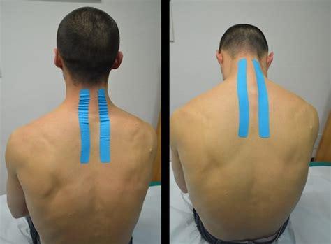 forte giramento di testa terapia per il dolore cervicale rimedi esercizi postura