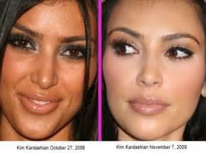 kim kardashian nose job plastic celebrity surgery