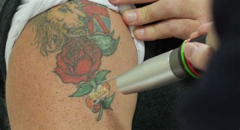 how do tattoos get removed revlite laser removal andrea catton laser clinic