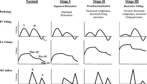 impaired relaxation pattern of lv diastolic filling diastolic dysfunction and risk of atrial fibrillation