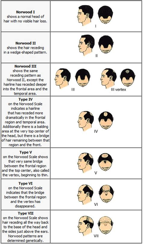 male pattern baldness types cure against baldness norwood hamilton scale of male