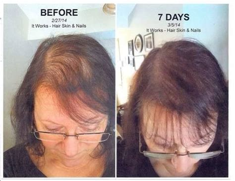 hair shops who work with thin balding hair in chicago 16 best hair skin nails supplements images on pinterest
