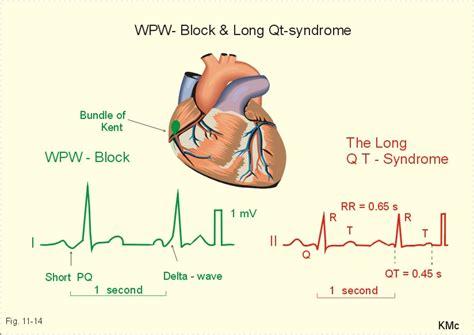 Membran V 3 R Rr qt causes symptoms treatment qt