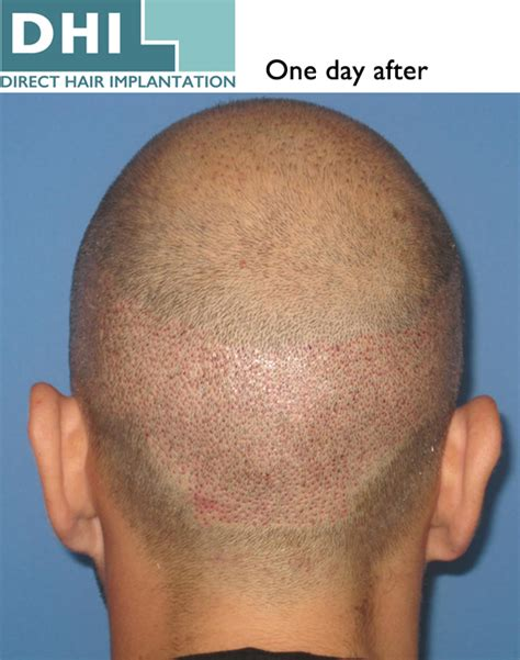 dhi hair transplant reviews dhi hair transplant the best hair of 2018