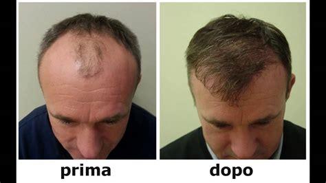 alimentazione anticaduta capelli keraeiko rimedi naturali anticaduta capelli