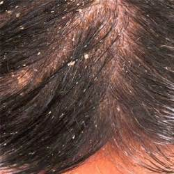 dandruff shoo for colored hair tips to treat dandruff naturally hairobics all