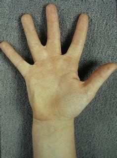 the hand of a patient with syndactyly of several digits congenital hand and arm differences