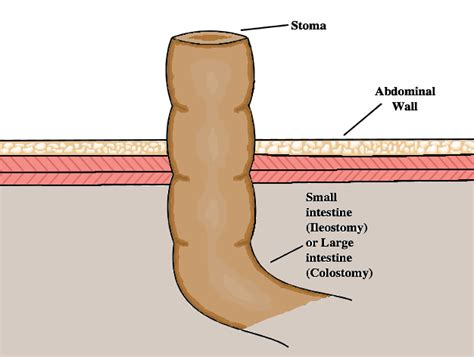 how to change a colostomy bag diagram how to change a colostomy bag diagram 28 images stoma