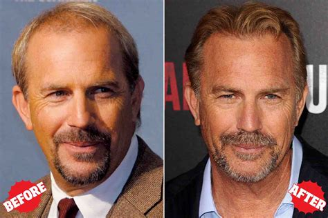 celebrity hair transplants before after hair restoration stigma lifting likely thanks to celebrities