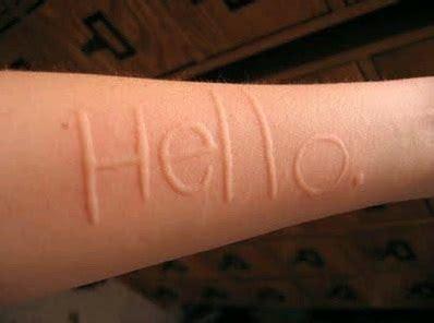 urticaria cuero cabelludo picor o alergia al tinte pruebas del parche bellezapura