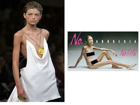 sectioned for anorexia anorexia and rm11