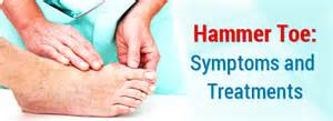 how to fix hammer toes at home hammer toe symptoms and treatments yourfootdoc