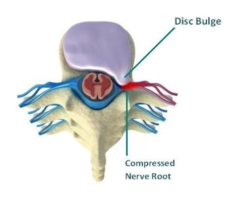 herniated disc diagram lumbar disc herniation slipped disc in the low back
