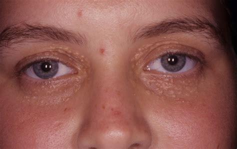 Daftar Krim Mata cara menghilangkan syringoma pada kulit sekitar mata yang