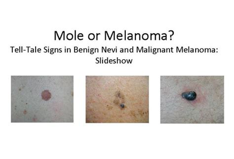 multi colored nevi mole or melanoma tell tale signs in benign nevi and