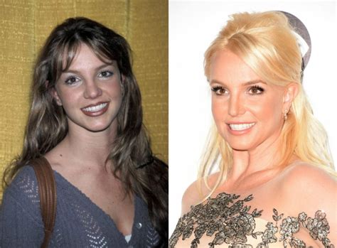 Britneys To Toe Plastic Surgery by Before And After Plastic Surgery 10