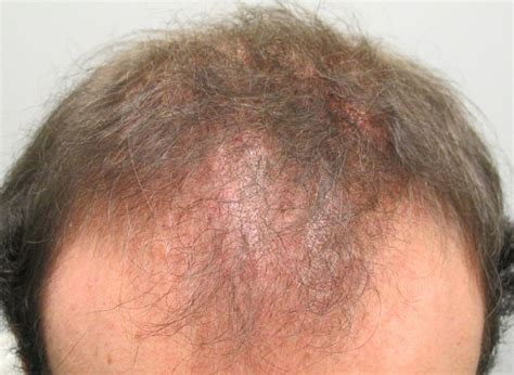cicatricial pattern hair loss scalp psoriasis male pattern alopecia baldness is