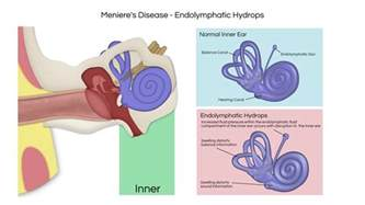 endolymphatic hydrops www pixshark images