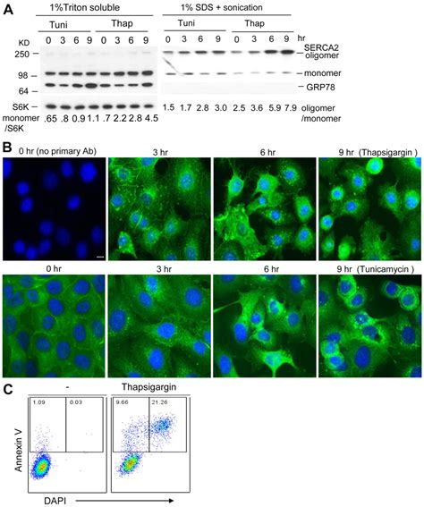 protein aggregation protein aggregation of serca2 mutants associated with