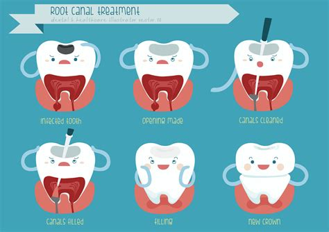 comfort dental root canal cost 3 reasons a root canal may be the right procedure