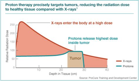 proton cancer treatment cost proton therapy cancer treatment advanced radiation