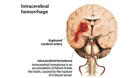 stay a brain bleed a in the balance a story books intracerebral hemorrhage miami brain spine center