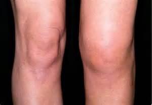 rã bel rheumatoid arthritis and bell s palsy help hip argus3d