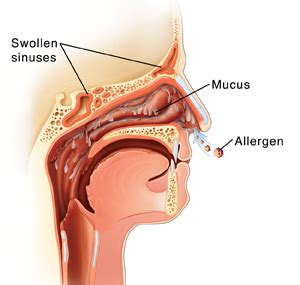 Is Clear Mucus Runny Nose Detox Reaction by Understanding Nasal Allergies Articles Mount Nittany