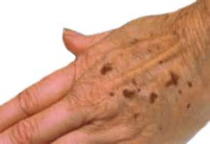 Signs and symptoms of age spots