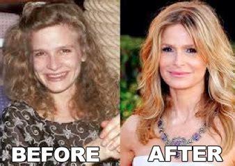 jennifer jason leigh looks like kyra sedgwick celebrity cosmetic surgery photos kyra sedgwick plastic