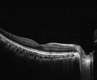 Nabil Lazer plymouth cornwall laser eye surgery