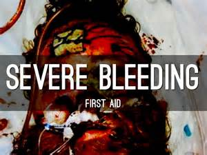 how does a bleed while in heat severe bleeding aid by soriano