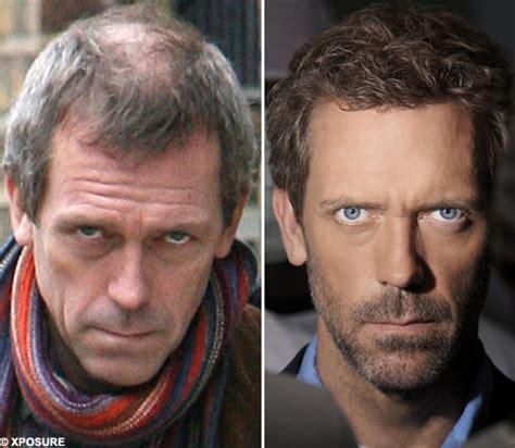 Hugh Laurie   Balding Celebrities
