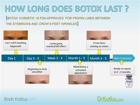 How Long Does Botox Last Doctor Answers Tips Realself | botox longer archives dr brett kotlus cosmetic