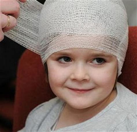 ematoma in testa ematoma sulla testa di un bambino