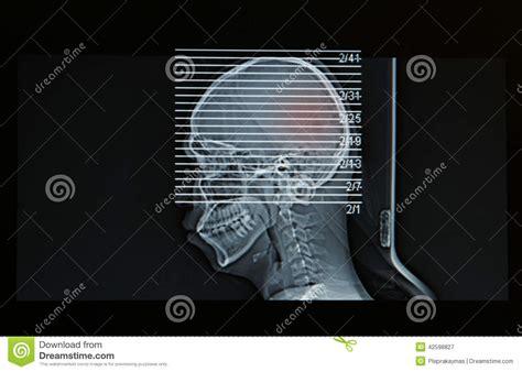 risonanza alla testa risonanza magnetica della testa della lesione alla testa