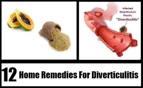 12 diverticulitis home remedies treatments and