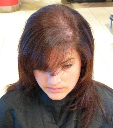 how many celebrities have thinning hair celebrities facing hair loss while there are a number of