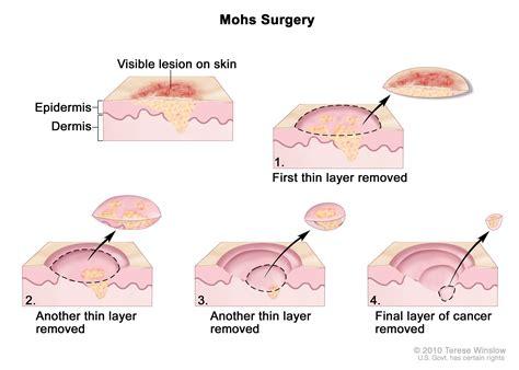 hard lump under c section scar penile cancer treatment pdq 174 patient version national