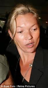 Kate Moss Weathered For Fhm by Kate Moss Tackles One Skin Problem But Reveals Another