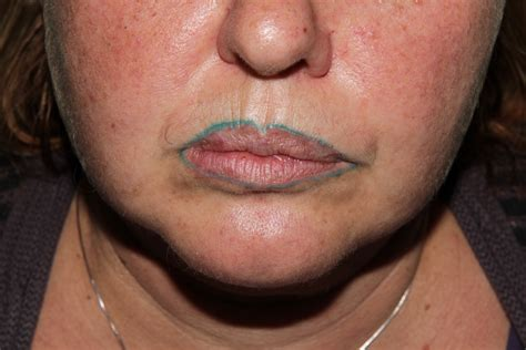 lip liner tattoo s bad lip liner turns blue 969