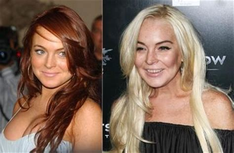 Ill Plastic Surgery Hollyscoop by 301 Best Images About Before After On